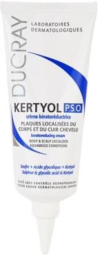 Ducray Kertyol P.S.O. концентрат за проблемна кожа за загрубяла кожа