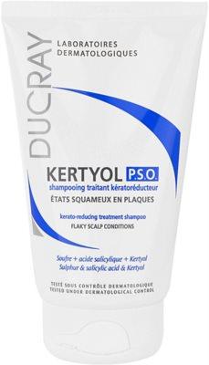 Ducray Kertyol P.S.O. šampon proti prhljaju 1