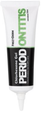 Frezyderm Oral Science Periodontitis gel pri vnetju dlesni in simptomih paradontoze