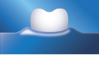 Philips Sonicare DiamondClean HX9352/04 sonický elektrický zubní kartáček s nabíjecí sklenicí 11