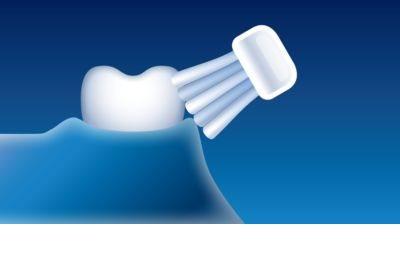 Philips Sonicare DiamondClean HX9372/04 sonična električna zobna ščetka s polnilnim kozarcem 10