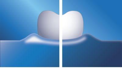 Philips Sonicare DiamondClean náhradní hlavice pro zubní kartáček 4