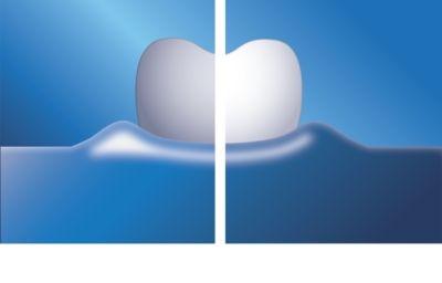 Philips Sonicare HealthyWhite+ HX8911/01 cepillo de dientes eléctrico sónico 14