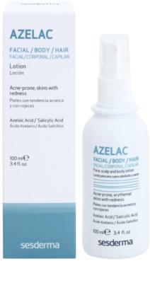 Sesderma Azelac beruhigendes Tonikum zur Behandlung von fettiger Haut mit Akne 1