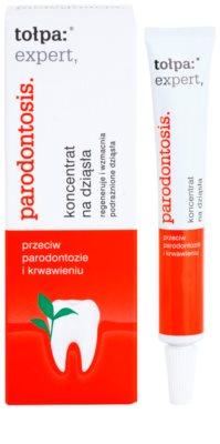Tołpa Expert Parodontosis żel regenerujący przeciw krwawieniu dziąseł 1