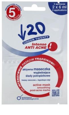Under Twenty ANTI! ACNE INTENSE čisticí pleťová maska proti akné
