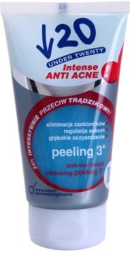 Under Twenty ANTI! ACNE INTENSE mélytisztító peeling a bőr tökéletlenségei ellen