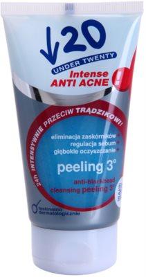 Under Twenty ANTI! ACNE INTENSE дълбоко почистващ пилинг против несъвършенства на кожата