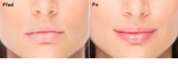 FacEvolution LipPlus lip gloss nutritiv  cu efect lifting