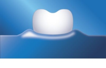 Philips Sonicare HealthyWhite + HX8911/01 Sonic elektromos fogkefe