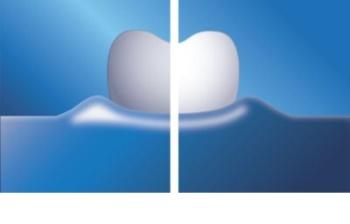 Philips Sonicare HealthyWhite + HX8911/01 cepillo de dientes eléctrico sónico