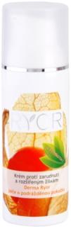RYOR Derma Ryor krema proti rdečici in razširjenim venam s probiotiki