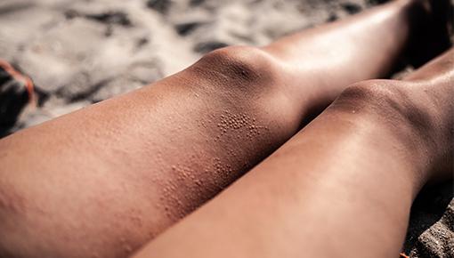 Quais são os sintomas mais frequentes da alergia ao sol?