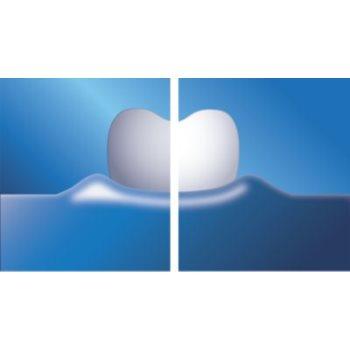 Philips Sonicare DiamondClean HX9332/04 sonična električna zobna ščetka s polnilnim kozarcem 9