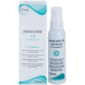 Synchroline Aknicare  CB емульсія у формі спрею для зменшення проявів акне на грудях та спині 2