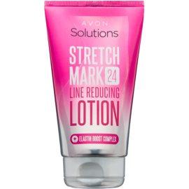 Avon Solutions Stretch Mark leite corporal para eliminar as estrias  150 ml