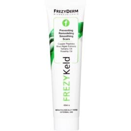 Frezyderm FREZYKeld Creme zur Prävention, Remodellierung und Glättung von Narben  40 ml