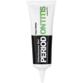 Frezyderm Oral Science Periodontitis gél a fogány és az ínygyulladás tüneire  30 ml